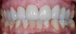 RESTORATIVE PATIENT WELCH DENTAL IN KATY TEXAS