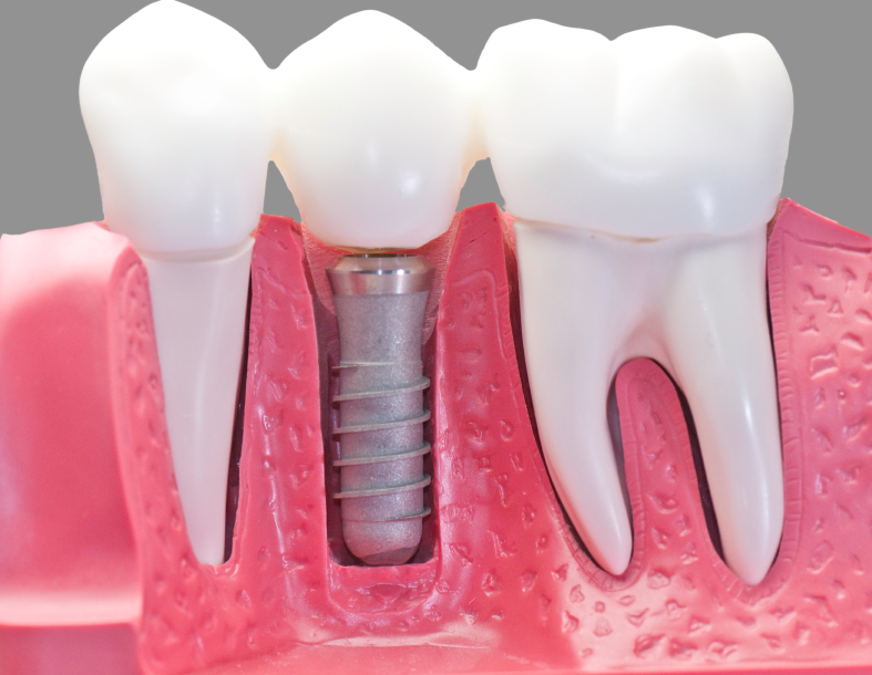 Dental Implants Katy Texas
