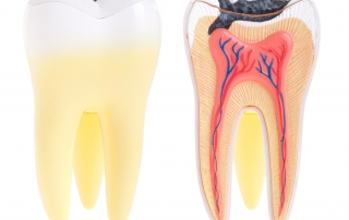Endodontics (Root Canal Therapy) in Katy, Texas