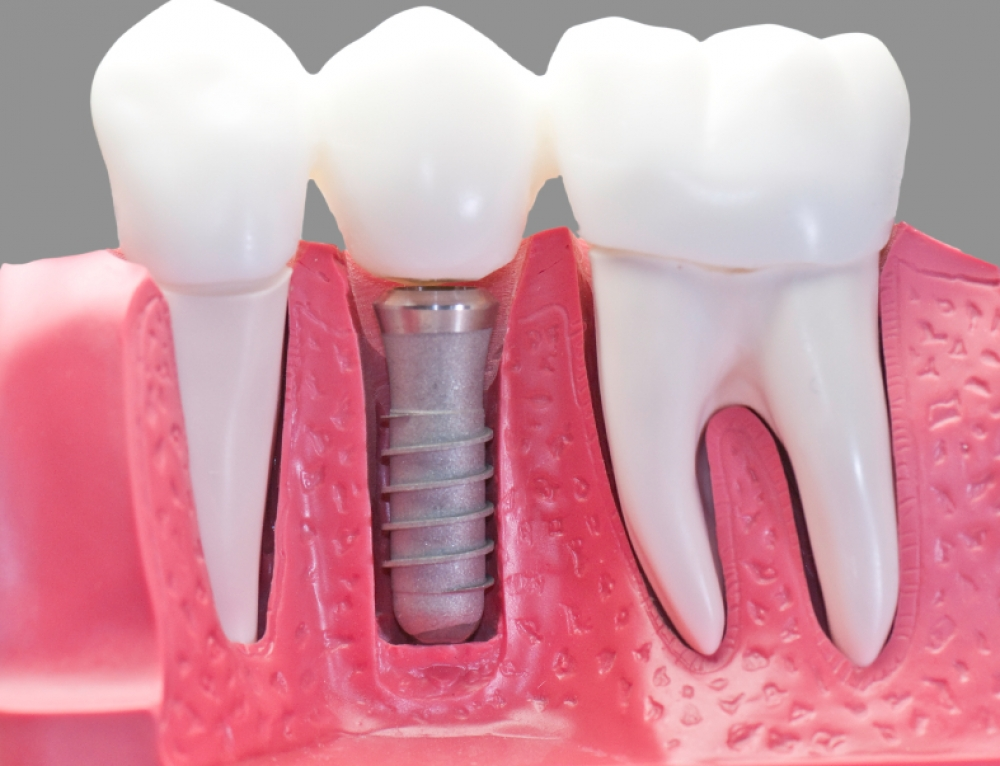 Making the Decision to Have Dental Implants