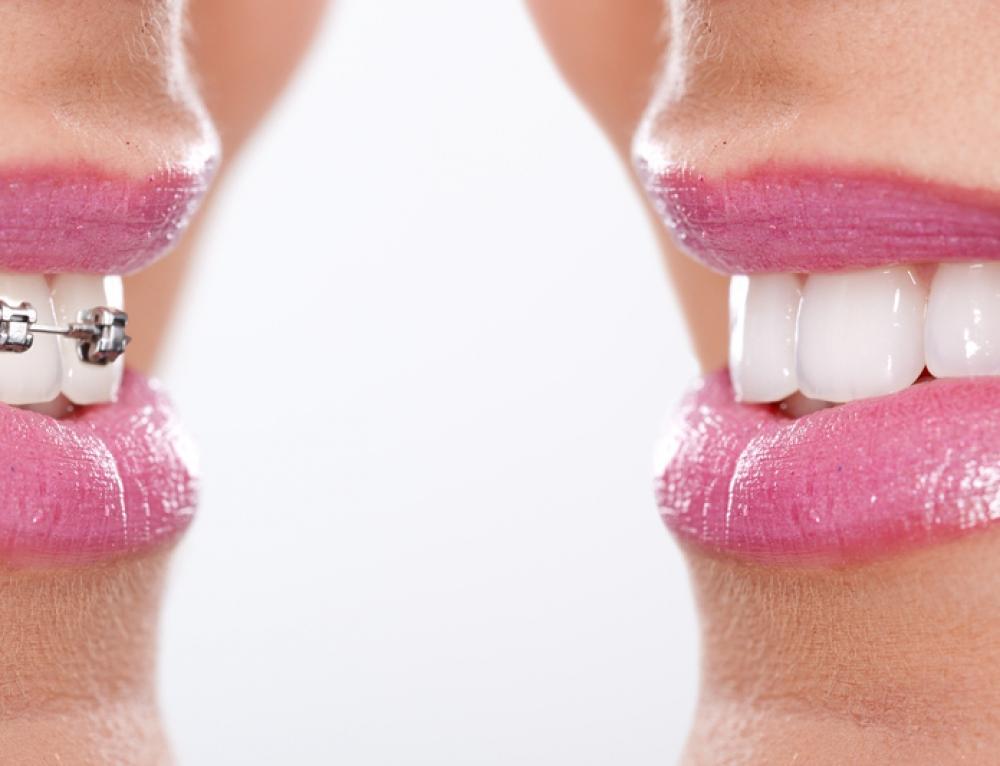 Acid Erosion vs. Tooth Decay: The Perils of Orthodontics