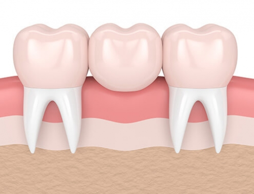 Taking Care of Dental Bridges