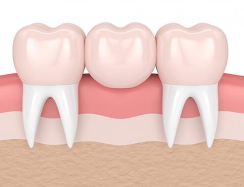 Taking Care of Dental Bridges